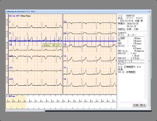 時間間隔と心拍数換算値計測機能